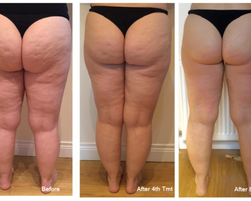 Lipofirm-Pro-Legs-BA