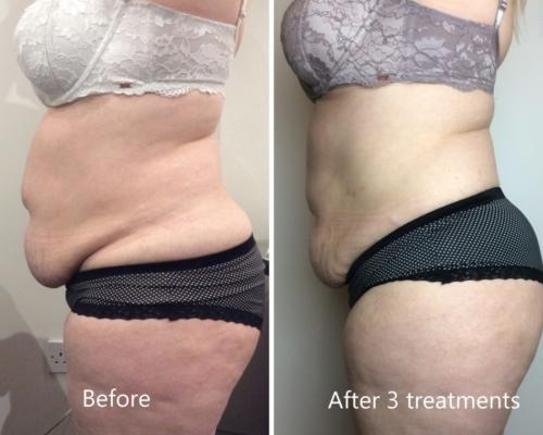 Tummy-contour-2-1024×760